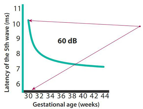 Wave five latency graph and gestational age