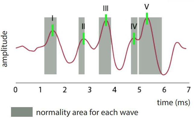 ABR waves and normality areas