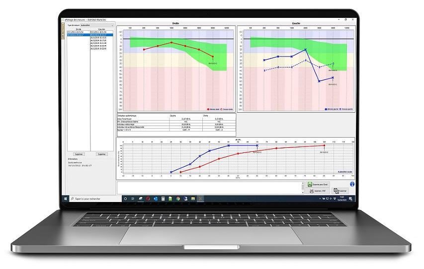 Echosoft software on MAC with audiometry measurement