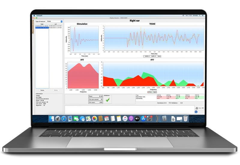 Echosoft software on MAC with automatic TOAE measurements