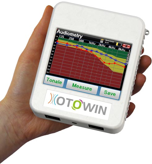 Handheld otowin device with audiometry graph